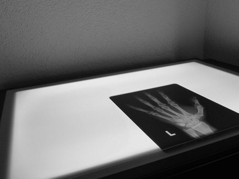 Eröffnung Handchirurgie Seefeld