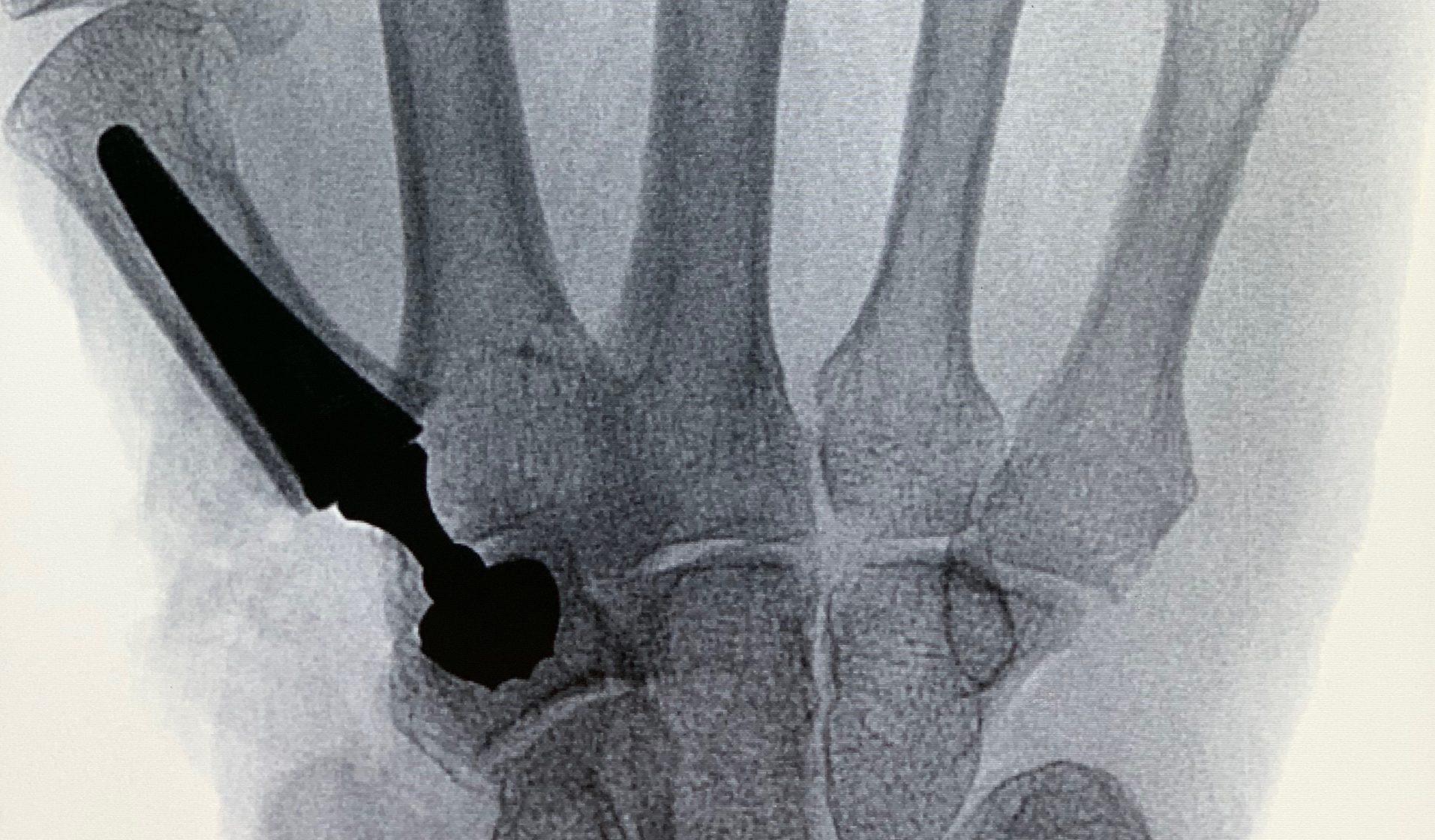 Kerimedical Touch, Prothese, Daumensattelgelenk, Daumensattelgelenkarthrose Rhizarthrose, Sebastian Kluge, Handchirurgie Seefeld, Archamps